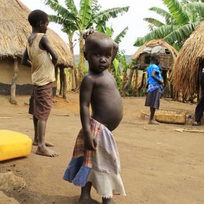 Nälkää ei Ugandan pakolaisasutusalueilla nähdä, mutta ravintoarvot voivat olla alhaisia. Suuri osa pakolaisista etenkin kongosta tulevat köyhistä oloista maaseudulla, ja elämä pakolaisasutusalueilla on monella tapaa samanlaista kuin kotona.