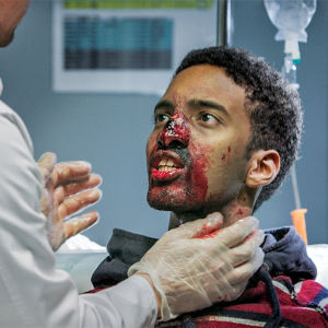 Poika on lääkärissä kasvot veressä.