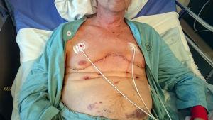 Seppo Lepistö sairaalassa keuhkonsiirron jälkeen