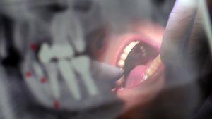 Hammaslääkäri tutkii suuta.