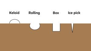 Illustration av de olika ärren: Keloid (som står upp) och rolling, box och ice pick som går ner i huden.