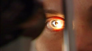 Adenovirus gör ofta ögonen röda.