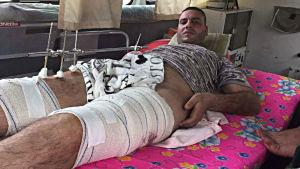 Mohammed Manteer på sjukhus i Bagdad.
