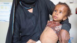 Mansour ja Suha ovat aliravittuja. Samassa tilanteessa on 5,2 miljoonaa Jemeniläistä lasta.