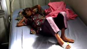 YK: Sodan repimä Jemen on lapsille maanpäällinen helvetti