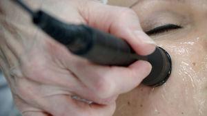 Kosmetologi tekee radiofrekvenssihoitoa