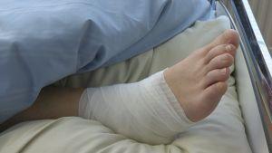murtunut jalka