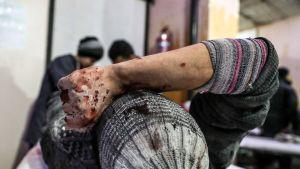 Loukkaantunut mies saa hoitoa vammoihinsa sairaalassa Itä-Ghoutassa.