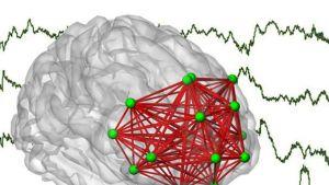 grafiikkakuva aivoista