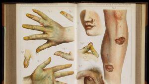 Aukeama, jossa on kuvia haavaumista käsissä, kasvoissa, sääressä ja peniksessä.