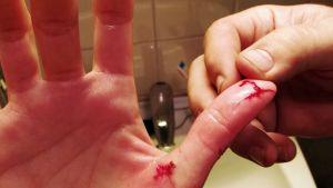 Verisiä haavoja peukalossa hauen puraisun jälkeen