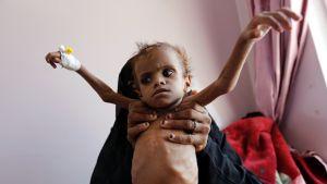 Kuvassa nainen kannattelee vakavasti aliravittua lasta.
