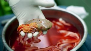 Kirurgi pitää munuaista kädessä.