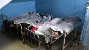Myrkkyviinaan kuolleiden ruumiita sairaalassa Assamissa, Intiassa.