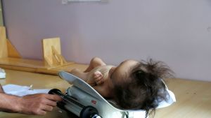 Viime vuonna 29 miljoonaa lasta syntyi konfliktialueilla. Lääkäri punnitsi aliravittua lasta sairaalassa Jemenin Sanaassa syyskuussa.