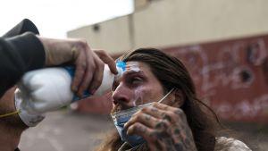Mielenosoittajaa hoidettiin kyynelkaasun aiheuttamien vammojen takia Minneapolisissa 27. toukokuuta.