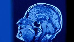 Kerroskuva aivoista