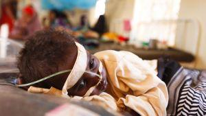 Aliravittu somalialaislapsi hoidettavana pakolaisleirin klinikalla.