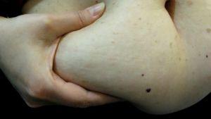 naisen käsi pitelee vatsanahkaa