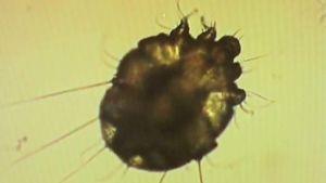 Syyhypunkki mikroskoopin alla.