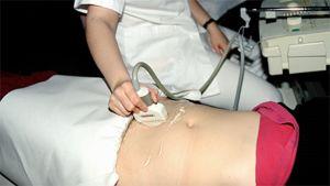 Kuvassa hoitaja tekee naisen vatsalle ultraäänitutkimusta.