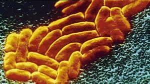 Mikroskooppikuva antibiooteille vastustuskykyisestä sairaalabakteerista.