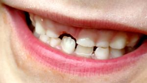 Lapsen hymyilevä suu.