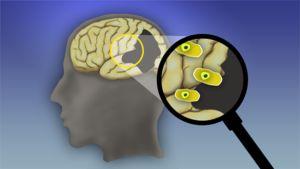 Aivot suurennuslasin alla (piirros)