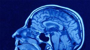 CT-kuva päästä, jossa näkyy kallon luita ja mm. aivot.