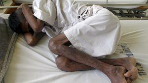 Aidsia sairastava vanki Klong Premin vankilassa Bangkokissa Thaimaassa
