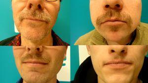 Yle Lahden Movember viikset.