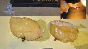 Espanjan poliisin kuva kokaiinilla täytetyistä rintaimplanteista.