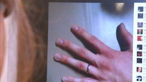 Tietokoneruudulla näkyy kuva vasemmasta kädestä, jonka nimettömässä on sormus.