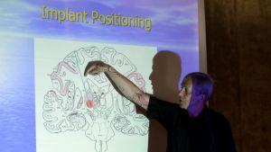 Professori Kevin Warwick esittelee aivoihin tulevaa implanttia.