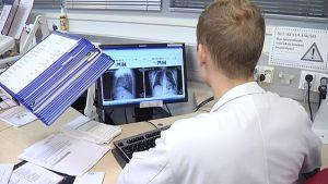 Lääkäri katsoo röntgenkuvia tietokoneelta.