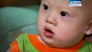 Australialaispariskunnan hylkäämä Downin syndroomaa sairastava vauva.