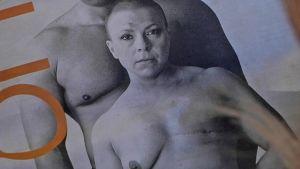 Rintasyöpä, sairaus, Hanna Lindèn