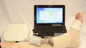 Haavanhoitojärjestelmä kiinnitettynä jalkaan.
