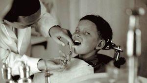 Puudutuksen keksiminen helpotti tuntuvasti hammaslääkäripelkoa. Vuonna 1961 Pertti Tammi puudutti pojan alahampaita Pelkosenniemellä.