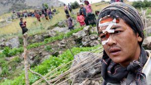 Nepalin maanjäristyksessä loukkaantunut nuori mies odottaa apua Uiyan kylässä.