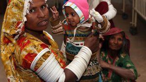 Nälkäänäkevä lapsi odotti hoitoa Tharparkarissa, Pakistanissa 27. tammikuuta 2015.