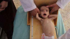 Syyrialainen aliravittu vauva
