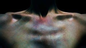 Mustelma rintakehässä.