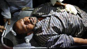 Iskussa haavoittunut bloggaaja Ranadipam Basu sairaalassa Dhakassa, Bagladeshissa 31. lokakuuta.