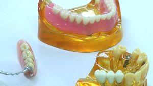 hammasproteeseja