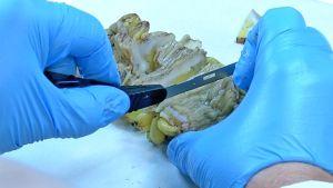 Patologi leikkaa paksusuolta.