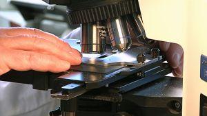 Patologi tutkii näytettä mikroskoopilla.