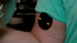 Fibrux-mittari tarkkailee lihaksen kehittymistä reaaliajassa