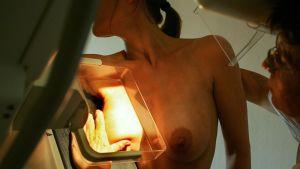 rintoja röntgenkuvataan