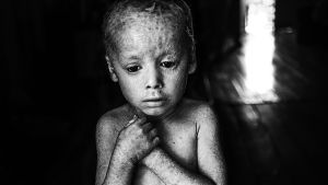 Pablo Ernesto Piovano, The Human Cost of Agrotoxins, 2015
